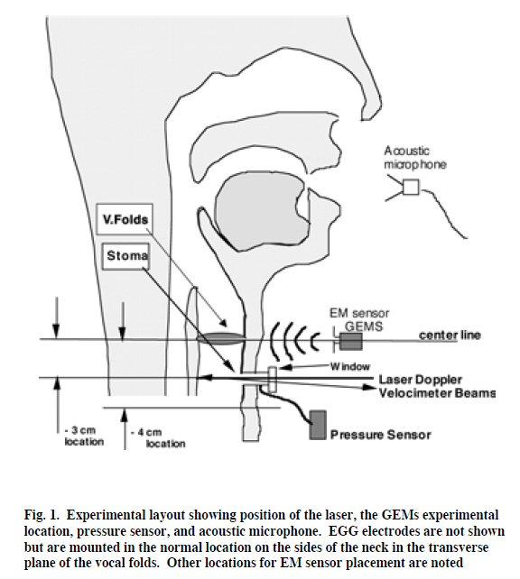 EM sensor